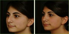 This is a 16year old female patient who underwent rhinoplasty and lip augmentation. In her pre-operative photographs, she has a nose that is too large for her face and a thin upper lip. During surgery, we reduced the size of her nose, refined the tip and added volume to her lips to give the face a better overall balance.    Eos Rejuvenation  Nima L. Shemirani, MD  Top Beverly Hills Plastic Surgeon  310.772.2866