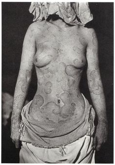 Henry G. Piffard - The Paisley Lady (Erythema Annulare), c.1891.  … from The Body: Photographs of the Human Form by William A. Ewing, Chronicle Books, 1994.