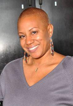 Hair loss Treatments for Black Women. Hair loss tips and treatment advice for black women Natural Hair Short Cuts, Natural Hair Care, Short Hair Cuts, Natural Hair Styles, Short Hair Styles, New Hair Growth, Hair Growth Tips, Bald Hair, Bald Women