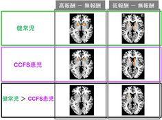 小児慢性疲労症候群では、報酬の感受性が低下している - 理研などが発表 | マイナビニュース