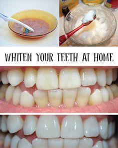 歯ブラシ・美・ハック - 歯のホワイトニング