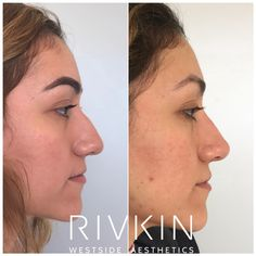 47 Best Dr  Rivkin's Non Surgical Nose Job images in 2019
