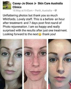 16 Best Results at SCA! images in 2016 | Skin Care, Skin