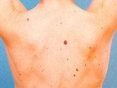An important part of skin cancer treatment is early detection. Find out how to spot potentially harmful moles and other signs of melanoma, and get other tips you should know. Short Textured Haircuts, Curly Pixie Haircuts, Popular Short Haircuts, Latest Haircuts, Pixie Hairstyles, Short Dark Hair, Short Hair Cuts, Short Pixie, Skin Cancer Treatment