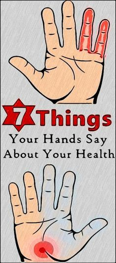 7 Indications Of Overall Health Given By Your Hands - Womens healtH - Healthy Natural Health Tips, Natural Health Remedies, Health And Beauty Tips, Natural Foods, Natural Products, Natural Cures, Natural Healing, Herbal Remedies, Psoriasis Remedies