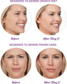 We now offer Botox!!!  Do you have crow's feet or frown lines?  Dr. Depp now has a quick and convenient way to remove those lines while you are at our office!