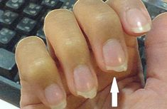 If your nails are breaking or splitting, you either have brittle nails or weak nails. Learn how to protect your nails and finally get the beautiful, strong nails you deserve. Nail Care Tips, Nail Tips, Nail Growth Tips, Peeling Nails, Split Nails, No Chip Nails, How Do You Stop, Types Of Manicures, Broken Nails