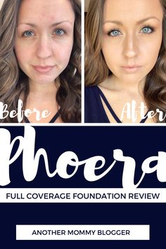Phoera full coverage foundation review with before and after photos. #phoera #fullcoverage #makeup #foundation #coverup Dermacol Foundation, Best Full Coverage Foundation, Beauty Ad, Beauty Tips For Skin, Beauty Hacks, Back Of My Hand, Oily Face, Makeup Tutorial Foundation, Glam Girl