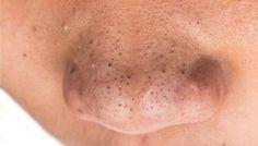 Os esfoliantes caseiros são ótimos para quem quer acabar com os cravinhos do rosto sem gastar muito. Baratos e eficientes, eles são fáceis de fazer e podem ajudar a deixar a pele mais lisinha.Como fazer esfoliante em casaUm dos melhores ingredientes para esfoliar a pele é o açúcar. Mas ele nunca deve ser aplicad