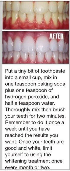 White teeth, just tried it! Works noticed a difference after one time!! #teethcaretip