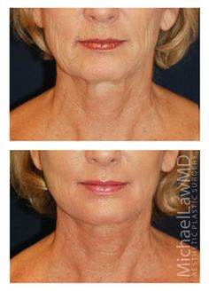 Necklift Patient 17 - Michael Law MD  Raleigh Plastic Surgery, Raleigh Plastic Surgeon, Plastic Surgeon Raleigh, Plastic Surgery NC, Raleigh Med Spa, The Plastic Surgery Center, Neck Lift, Chin Liposuction, Facial Rejuvenation, Lower Facial Rejuvenation, Raleigh Face Lift, Face Lift, Facial Plastic Surgery