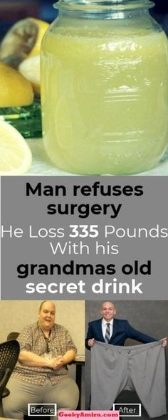 """Bryan Ganey from Charleston – South Carolina, loss 335 pounds for 1 year. His secret isn't a secret at all, he says. """"No gimmicks, no pills, no special foods"""". Just use this Natural Drink. Belly fat is the visceral fat that is underneath the muscles in yo Weight Loss Plans, Fast Weight Loss, Weight Loss Program, Weight Loss Tips, Weight Gain, Losing Weight, Fat Fast, Viseral Fat Loss, Fat Loss Diet"""