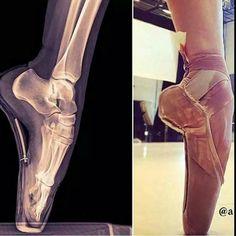 Soooo bad for your feet, but so satisfying · Ballet FeetBallet ShoesPointe  ShoesBallet DanceDance ...