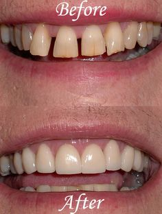 #Cosmetic #dental before & after