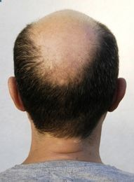 Best Natural #HairLoss Treatments for #Hair Regrowth www.soundfeelings...