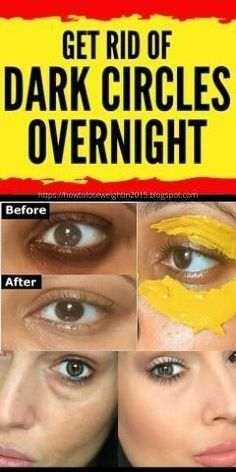 Dark Circles Treatment, Covering Dark Circles, Eye Treatment, Remove Dark Eye Circles, Dark Circles Around Eyes, Dark Circle Remedies, Dark Under Eye, Under Eye Bags, Dark Eyes