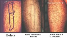 Before and after photos of Toronto patients who inderwent laser tattoo removal at SpaMedica http://www.spamedica.com/cosmetic-dermatology-toronto/laser-tattoo-removal-toronto/ #lasertattooremoval #toronto