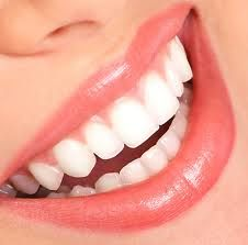 Welcome to Luxe Dental. Uptown Dentist, Victory Park Cosmetic Dentist a leading dental care in Dallas TX. General Dentistry, Cosmetic Dentistry, Orthodontics and Oral Surgery. Perfect Teeth, Perfect Smile, Beautiful Smile, Beautiful People, Dental Health, Dental Care, Dental Group, Smile Dental, Dental Braces
