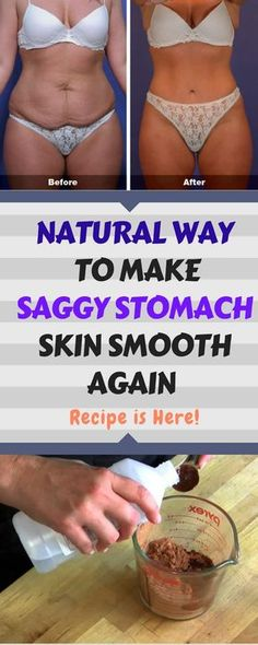 Natural Remedies To Lose Weight How To Make Your Saggy Stomach Skin Smooth Naturally - Many women opt for expensive cosmetic treatments to get the looks they want. However, these costly procedures are not a guarantee that your body will [. Tighten Loose Skin, How To Tighten Stomach, Cosmetic Treatments, Spa Treatments, Belly Fat Workout, Tips Belleza, Smooth Skin, Natural Cures, Natural Health