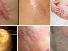 Elimine cicatrizes de qualquer parte do seu corpo em menos de um mês - Dicas Aki!
