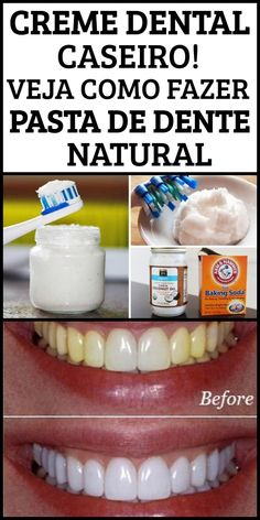 Beauty Treats, Soap, Personal Care, Bottle, Natural Toothpaste, Homemade Toothpaste, Hot Milk Cake, Do It Yourself Projects, Food