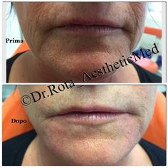 "Pre & Post Treatment with ""Radiesse"" ( advanced Filler)"