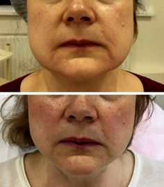 50 Best Thermage Facelift images in 2017 | Skin tightening