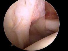 Arthroscopic shoulder surgery for the treatment of rotator cuff tears: Diagnostic arthroscopy