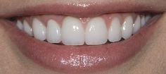View and rate Dr. Perrone's work on Rankipedia now. Porcelain Veneers :  http://www.rankipedia.com/dentist/dentistprofile/Dr-Marielaina-Perrone-DDS-Henderson/89014/id/125732