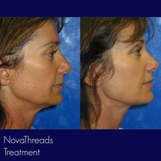PDO thread #facelift - non-surgical procedure designed to rejuvenate your face without the need for surgery   #revitta #manhattan #nyc  212.535.1201   #pdolift #threadlift #facelift #face #beauty #cosmetic #newyork #skin #newyorker #pdothreads #skintightening #newcosmetic #look #rejuvenate #newyorkcity #lookgood #beautiful #gorgeous #novathreads #newyorkbeauty #newyorkstyle  #beautytreatment #newbeauty Thread Lift, Facial Aesthetics, New York Beauty, New Cosmetics, Manhattan Nyc, Cosmetic Procedures, Face Beauty, New York Style, Skin Tightening