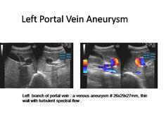 aneurysm of the portal vein