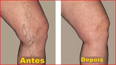 Vein Treatment Clinic provides varicose vein treatment by expert doctors.We also treat thread veins, leg pain, bulging veins and other venous conditions. Our clinics are located in New York, San Diego, New Jersey and Texas. Visit a vein clinic near you. Varicose Vein Removal, Varicose Vein Remedy, Varicose Veins Treatment, Spider Vein Treatment, Radiofrequency Ablation, Natural Treatments, Natural Remedies, Healing, Health