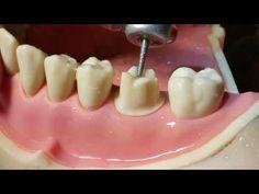 Molar Crown Preparation Walkthrough (tutorial) in the Simulation Lab Teeth Implants, Dental Implants, Restorative Dentistry, Ppr, Crown, Smile, Youtube, Clinic, Tooth