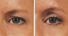 ¿Quieres una elevación de los ojos sin cirugía? En2 Minutos | La Salud Es Todo