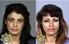 Crystal Meth addict first pictured in 2001 and then in 2008.