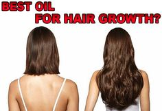 What Is The Best Oil For Hair Growth? #HairGrowth #BestHairOil #ArganOil #BestOilForHairGrowth Argan Oil Benefits, Best Hair Oil, Argan Oil Hair, New Hair Growth, Hair Remedies For Growth, Dry Scalp, Moroccan Oil, Hair Regrowth, Moisturiser