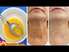 Just apply this remedy, you can Get Rid Of Neck Wrinkles and have healthier skin. It will help smooth, firm, and soften skin as well as to Get Rid Of Neck Wr. Wrinkle Remedies, Skin Care Remedies, Face Skin Care, Diy Skin Care, Home Remedies For Wrinkles, Neck Wrinkles, Wrinkle Remover, Skin Care Treatments, Natural Skin Care