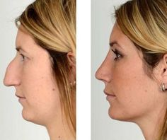 Louis, MO Rhinoplasty for Plastic Surgery Performed in… - Dr. Louis, MO Rhinoplasty for Plastic Surgery performed in . Acne On Nose, Nose Plastic Surgery, Nose Surgery, What Causes Pimples, Chin Liposuction, Forehead Lift, Save The Date, Rhinoplasty Before And After, Body Transformations