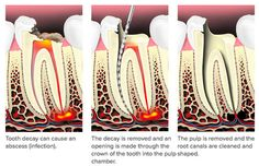 Aava Dental provide best root cannal treatment at really so reasonable rates.At Aava Dental,customer's health is first priority.