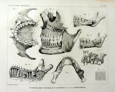 1831 antique anatomie dentaire des dents humaines gravure, ostéologie bouche vintage imprimer, squelette dent dents maxillaires crâne halloween