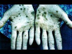 How To Detox Your Body, Heavy Metal Toxic, Chelation Calcium, Edta Magnesium - YouTube