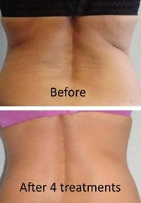 Fat Cavitation is a method for reshaping and toning the body. http://Eraze.com.au