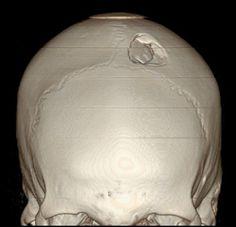 3D CT scan reconstruction of depressed skull fracture (Radiopedia.org)