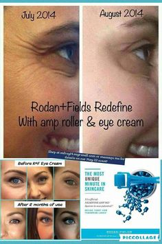 Love the results seen with Rodan + Fields!  Let's start to see your before and after!  Shop with me at mfrey14.myrandf.com!  60 day money back guarantee!