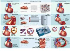 Tissue Engineering, Myocardial Infarction, Regenerative Medicine, Clinic, Patches, Muscle, Body Parts, Blood, Health