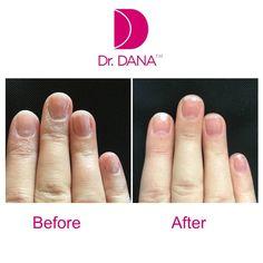 Dana Nail Renewal System - The Beauty Guide Damaged Nails, New Nail Polish, Brittle Nails, Hand Care, Beauty Guide, Healthy Nails, Nail Treatment, Natural Nails, You Nailed It