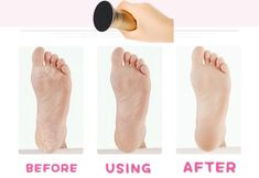 Best powerful electric foot callus remover manufacturer, one person one disc, more healthy,it can removes Dry, Dead, Hard, Cracked Skin & Calluses,more info contact: David Tel & Whatsapp: +86 189 0227 2436 Email: sunshiningdavid@gmail.com Foot File, Cracked Skin, Fashion Beauty, Electric, David, Healthy, Health