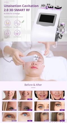 8 in 1 Unoisetion Cavitation 40Khz Radio Frequency Skin Tightening Cold Photon&MicroCurrent Slimming Machine Radio Frequency Facial, Radio Frequency Skin Tightening, Before And After Contouring, Body Massage Spa, Body Sculpting, Wrinkle Remover, Body Contouring, Body Treatments, Facial Care
