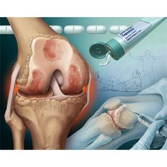 medical illustration of Osteoarthritis is a degenerative disease that causes cartilage loss and potentially bone loss and/or bone spurs. Shown is an osteoarthritic knee joint, oral and topical NSAIDS to help control pain, steroid injection to reduce inflammation, and exercises to strengthen supporting muscles (shown are leg lifts and tai chi). This illustration was created for the cover of American Family Physician.