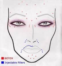 botox injection sites diagram google search beauty. Black Bedroom Furniture Sets. Home Design Ideas